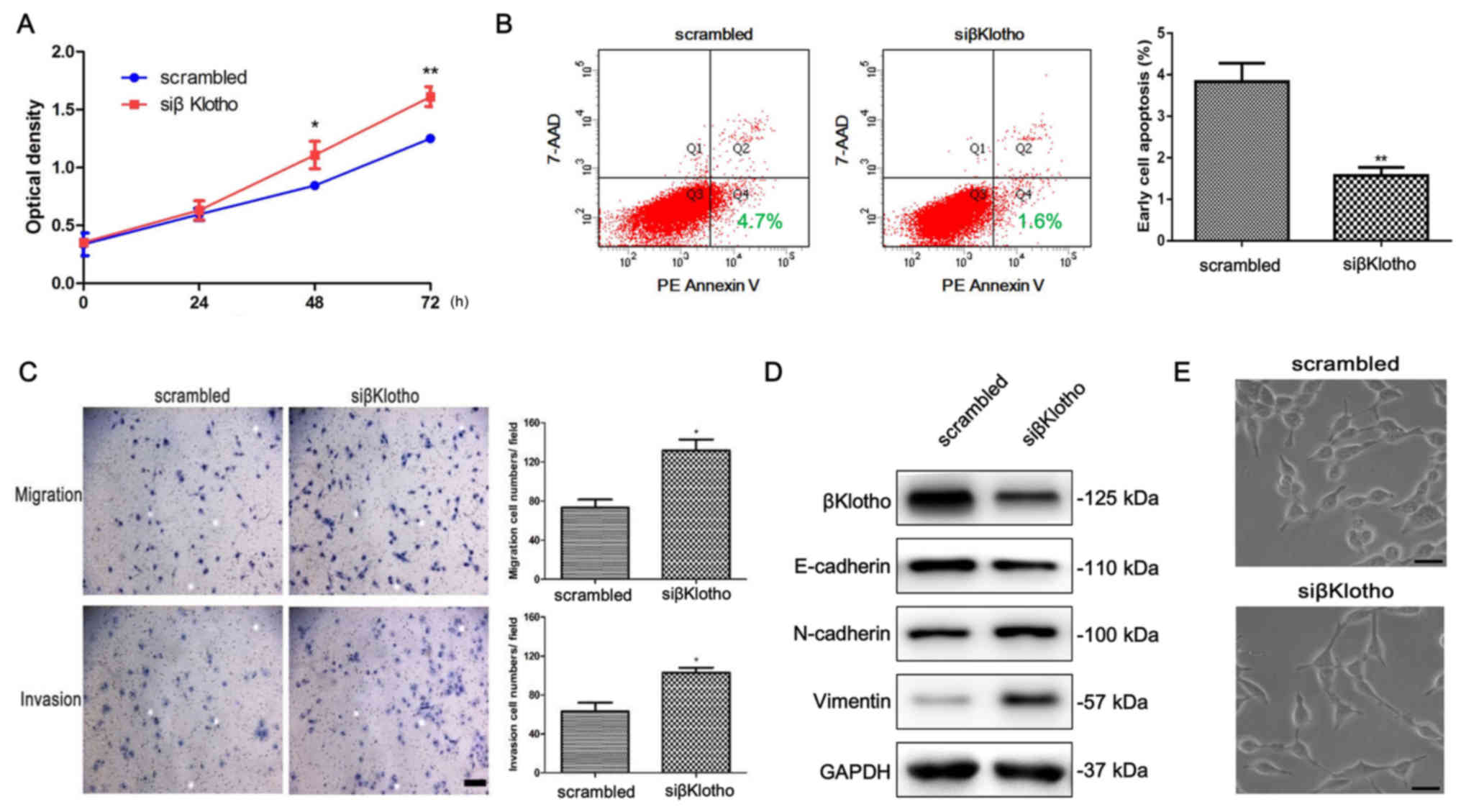 βKlotho inhibits androgen/androgen receptor‑associated