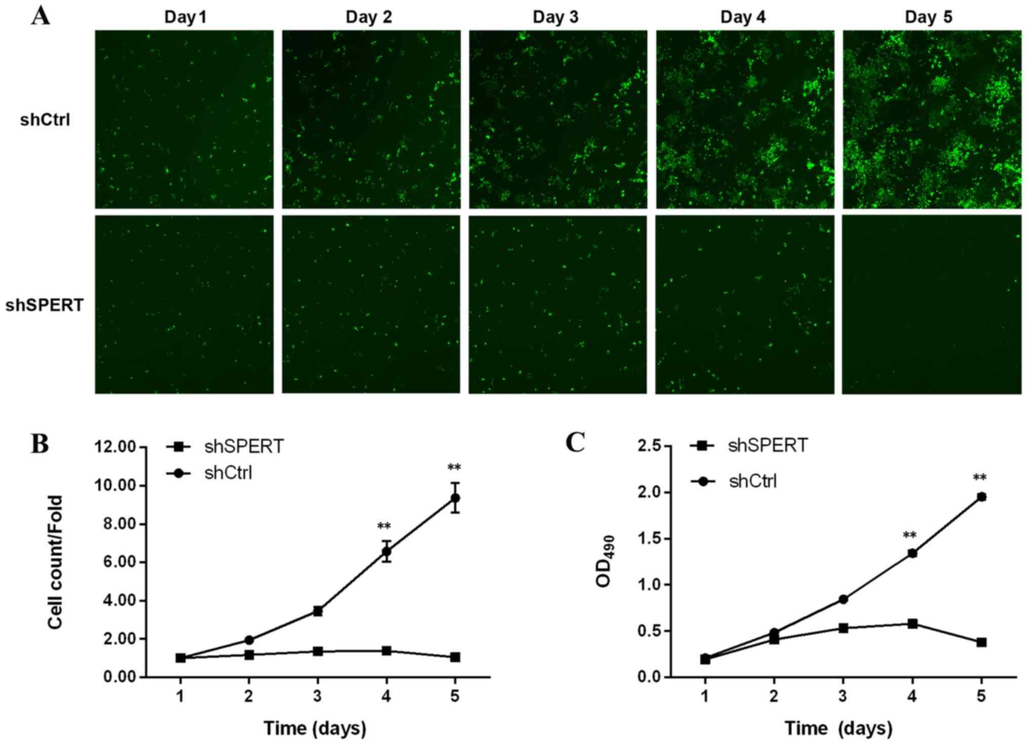 shRNA‑induced knockdown of the SPERT gene inhibits proliferation and
