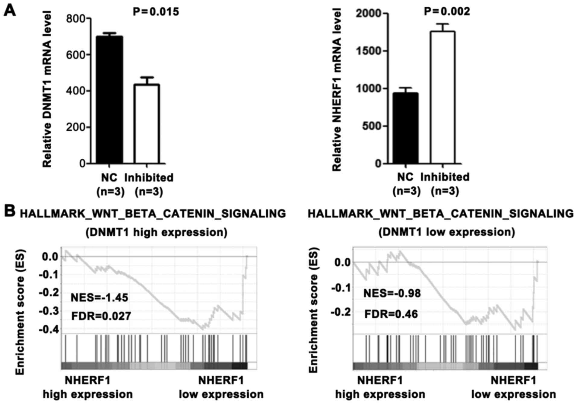 Wnt Signaling Pathway Upregulates Dnmt1 To Trigger Nherf1 Promoter Hypermethylation In Colon Cancer