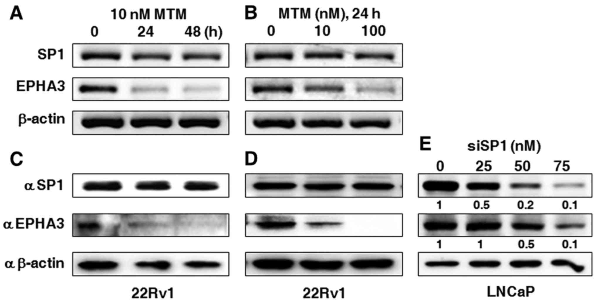 Androgen Receptor Induces Epha3 Expression By Interacting With Temperature Controller From Mtm Scientific Inc The 22rv1 Cells Were Treated Indicated Concentrations Of For 24 Or 48 H A And B Rt Pcr C D Western Blotting Performed To