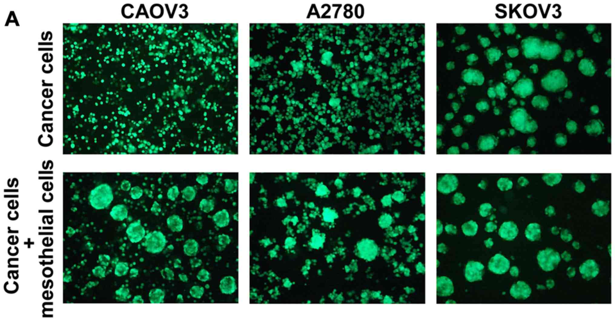 Mesothelial Cells Facilitate Cancer Stem Like Properties In Spheroids Of Ovarian Cancer Cells