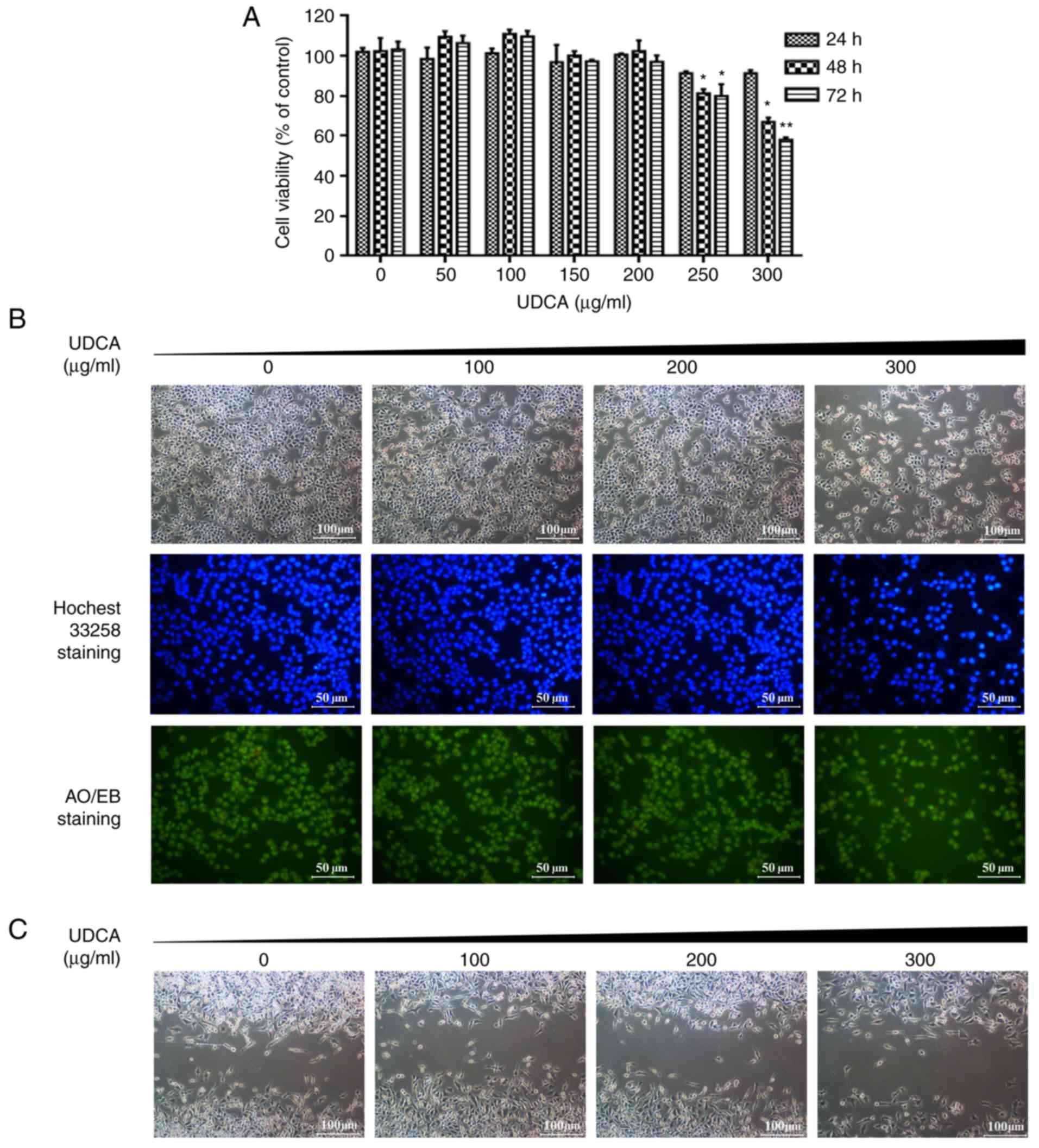 Apoptosis induced by ursodeoxycholic acid in human melanoma