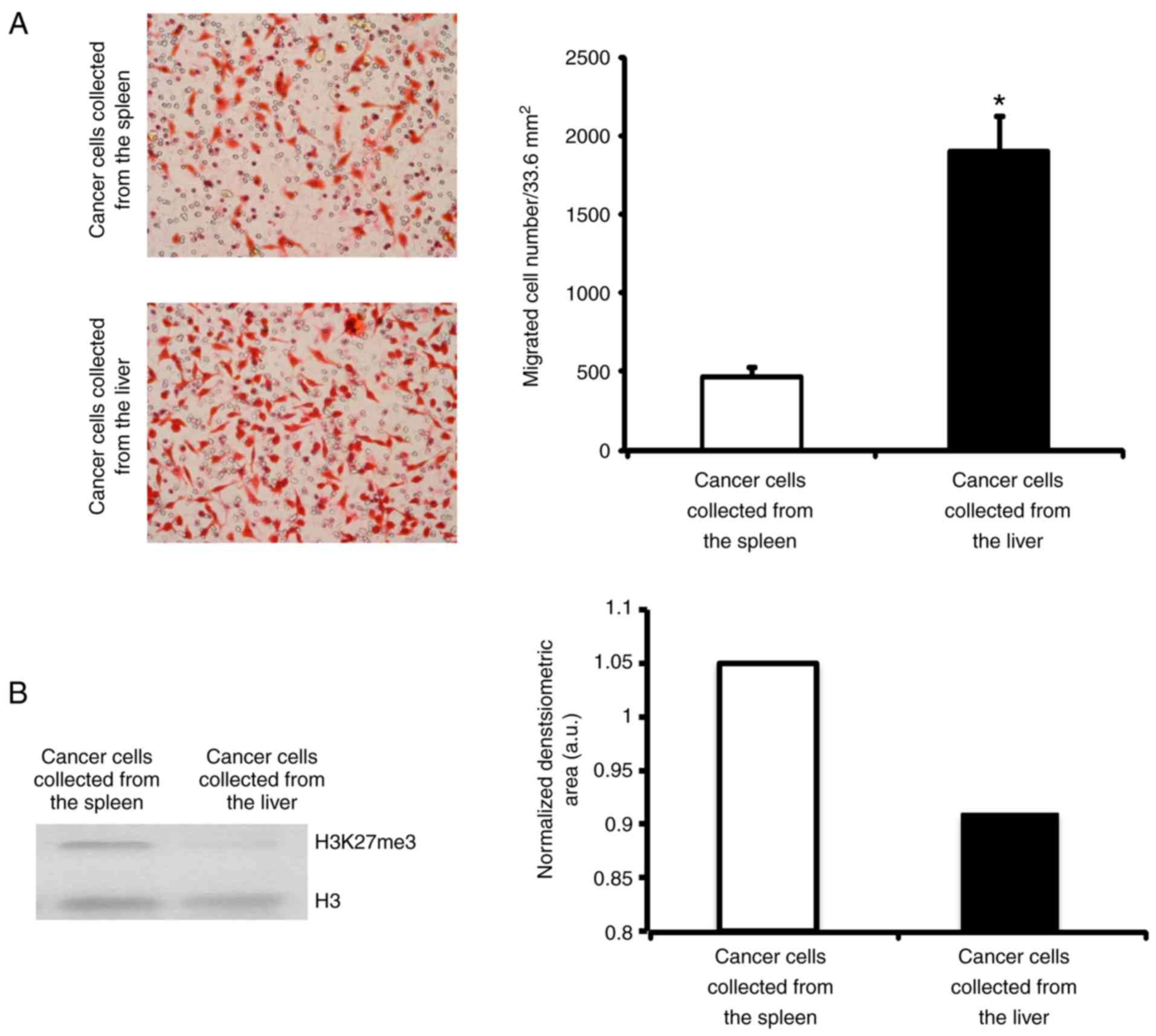 Nadh Dehydrogenase Complex I Is Overexpressed In Incipient Metastatic Murine Colon Cancer Cells