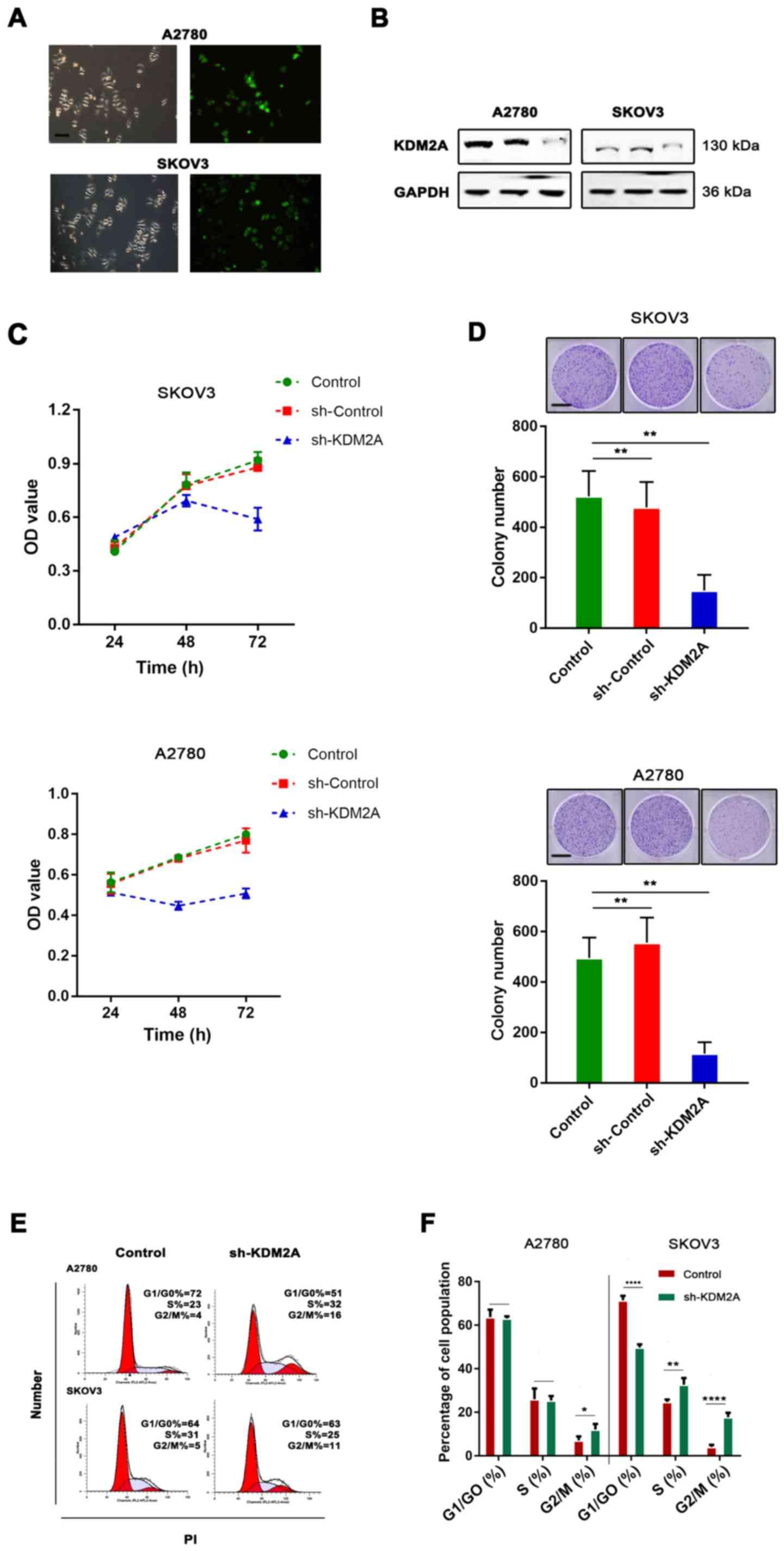Lysine demethylase 2A promotes the progression of ovarian