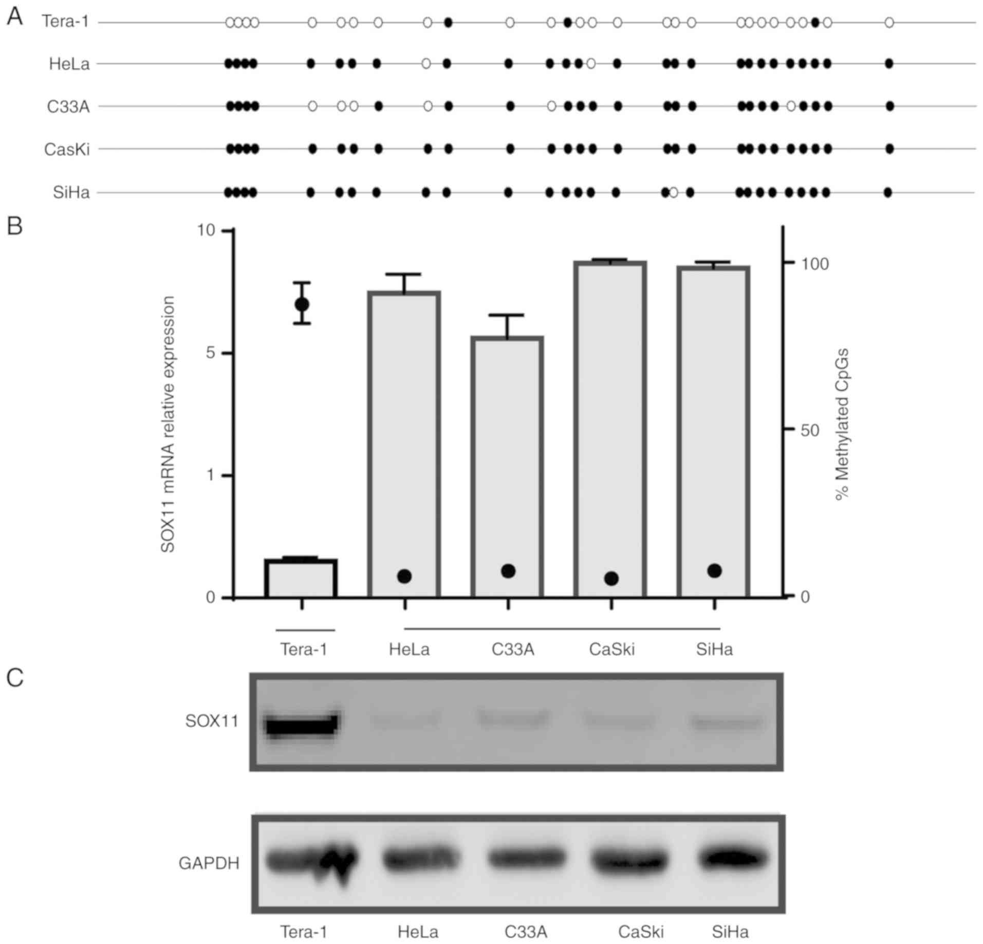 Promoter hypermethylation of SOX11 promotes the progression of
