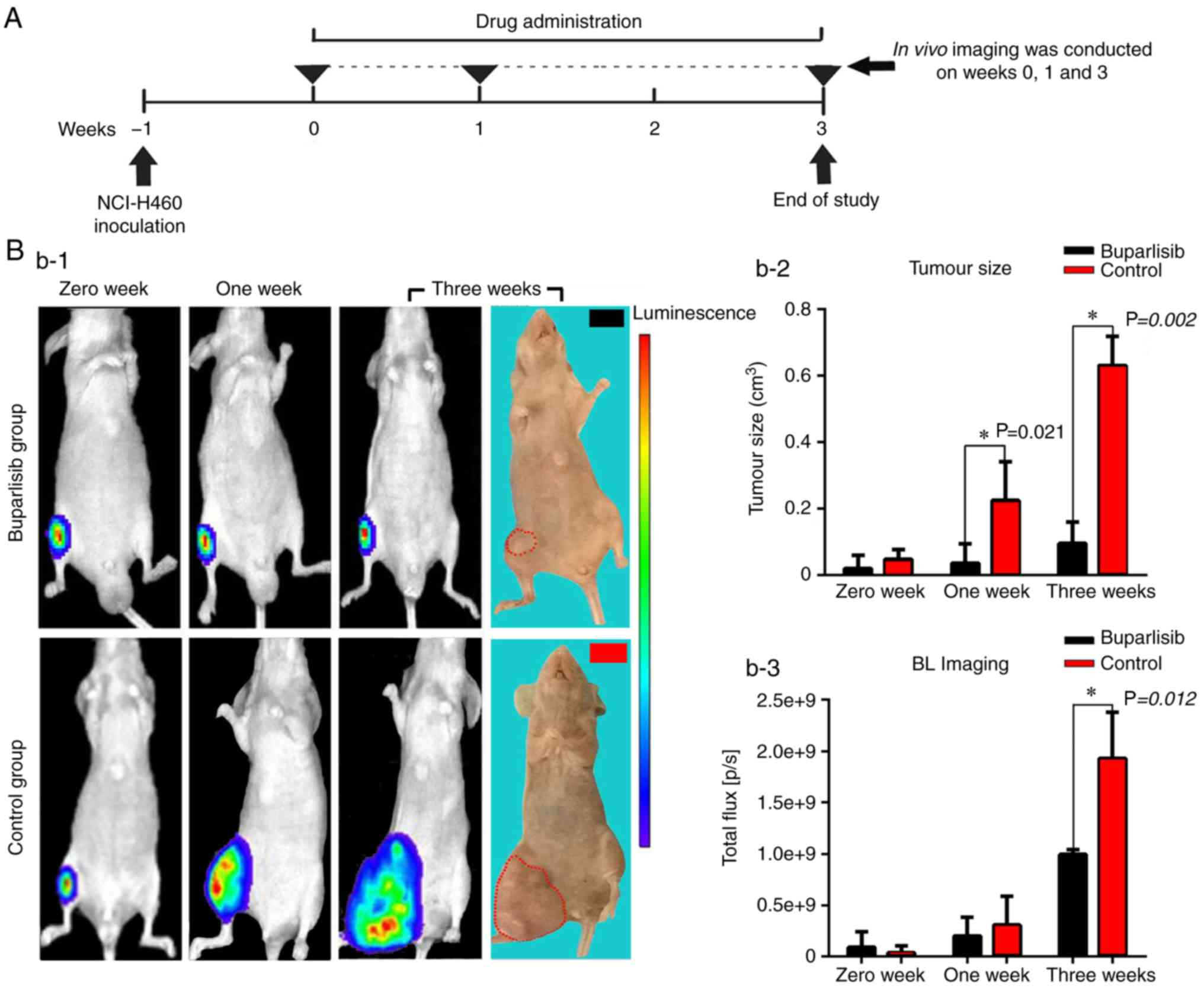 The PI3K inhibitor buparlisib suppresses osteoclast