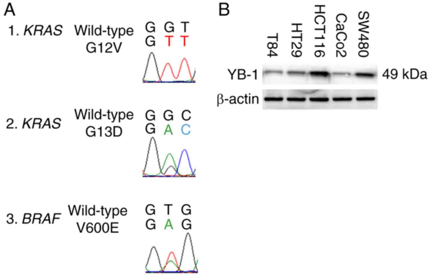 Y Box Binding Protein 1 Inhibits Apoptosis And Upregulates Egfr In Colon Cancer