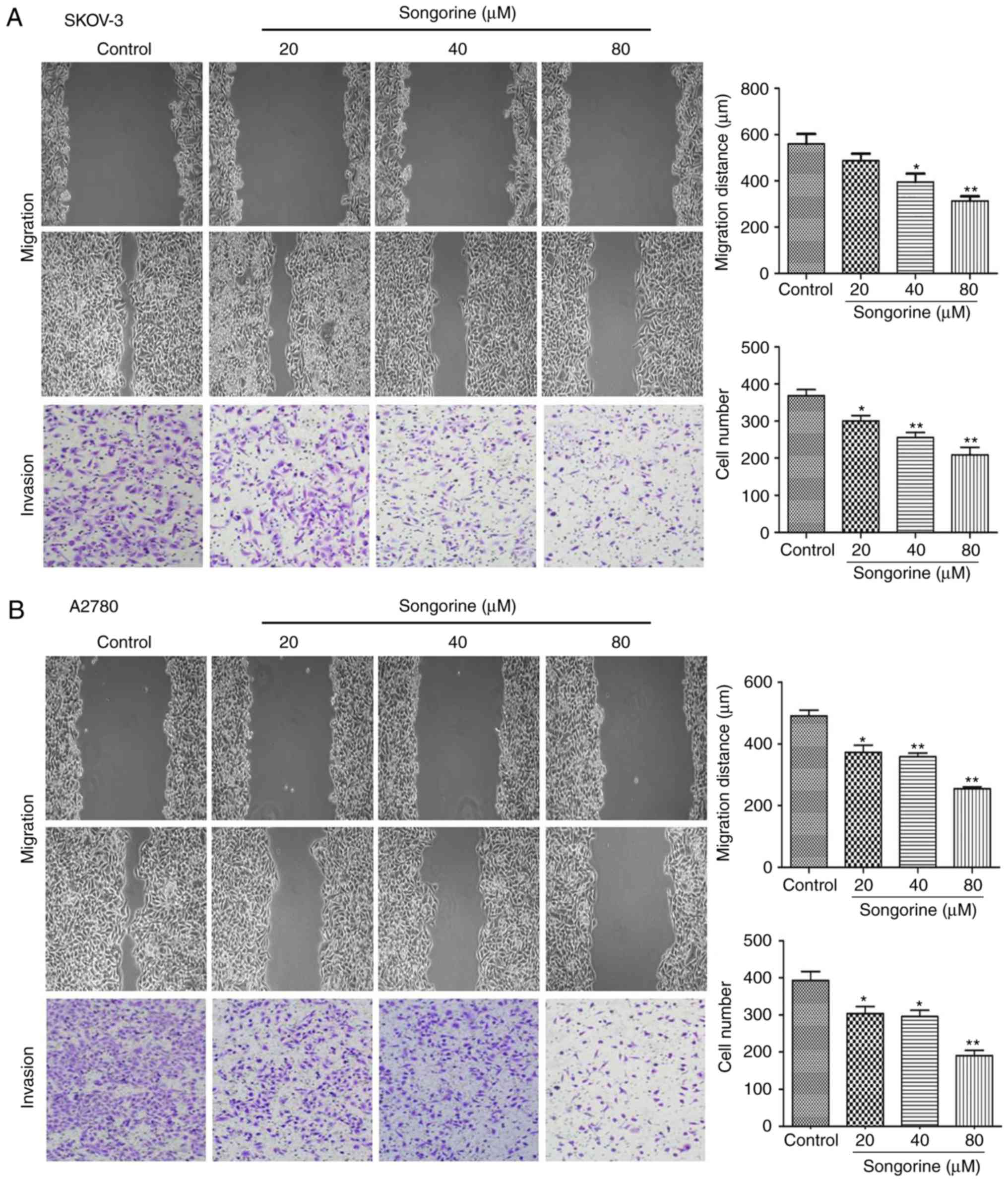 Songorine suppresses cell growth and metastasis in epithelial