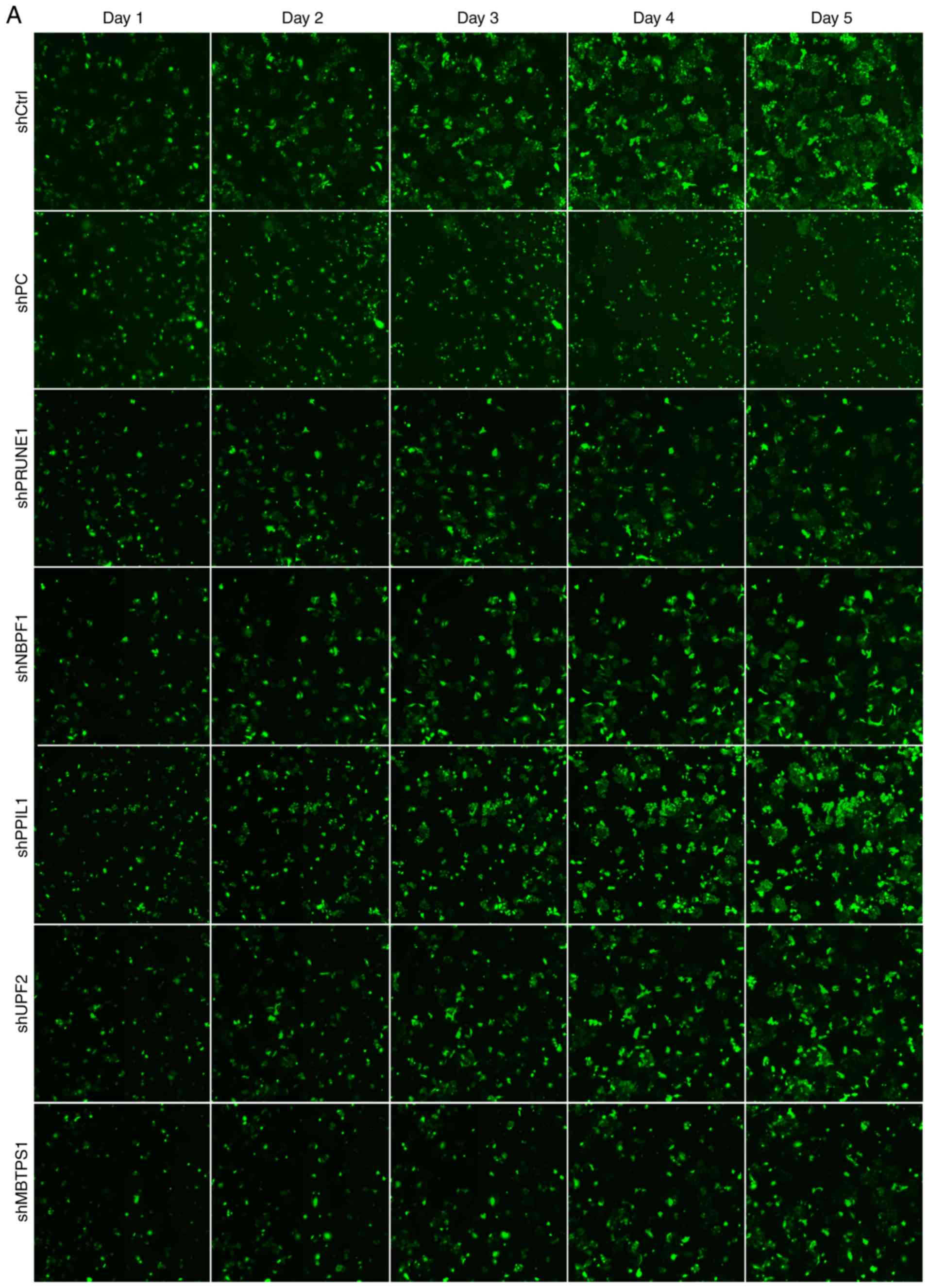 Gene expression alterations of human liver cancer cells following