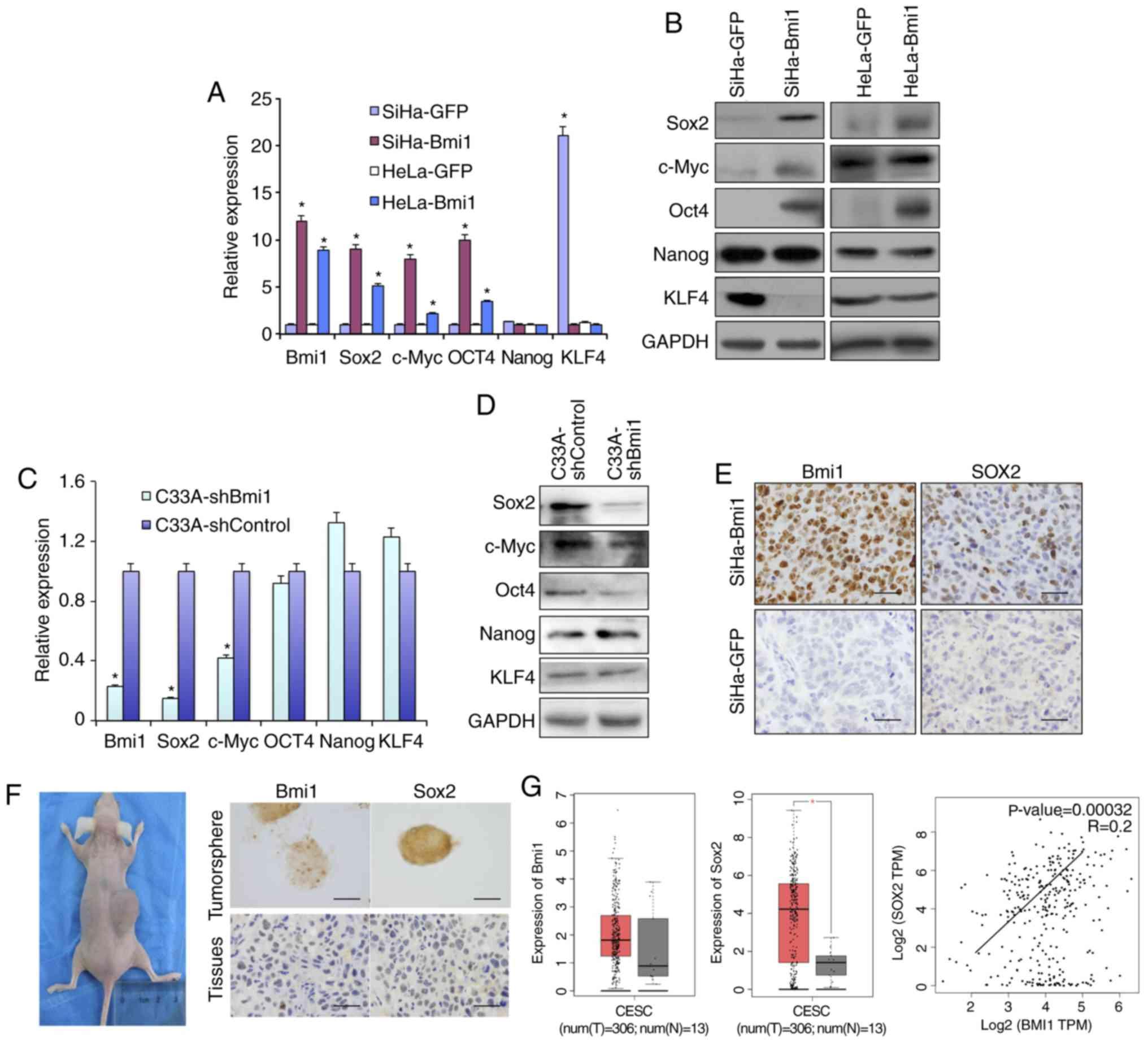 Aberrantly elevated Bmi1 promotes cervical cancer