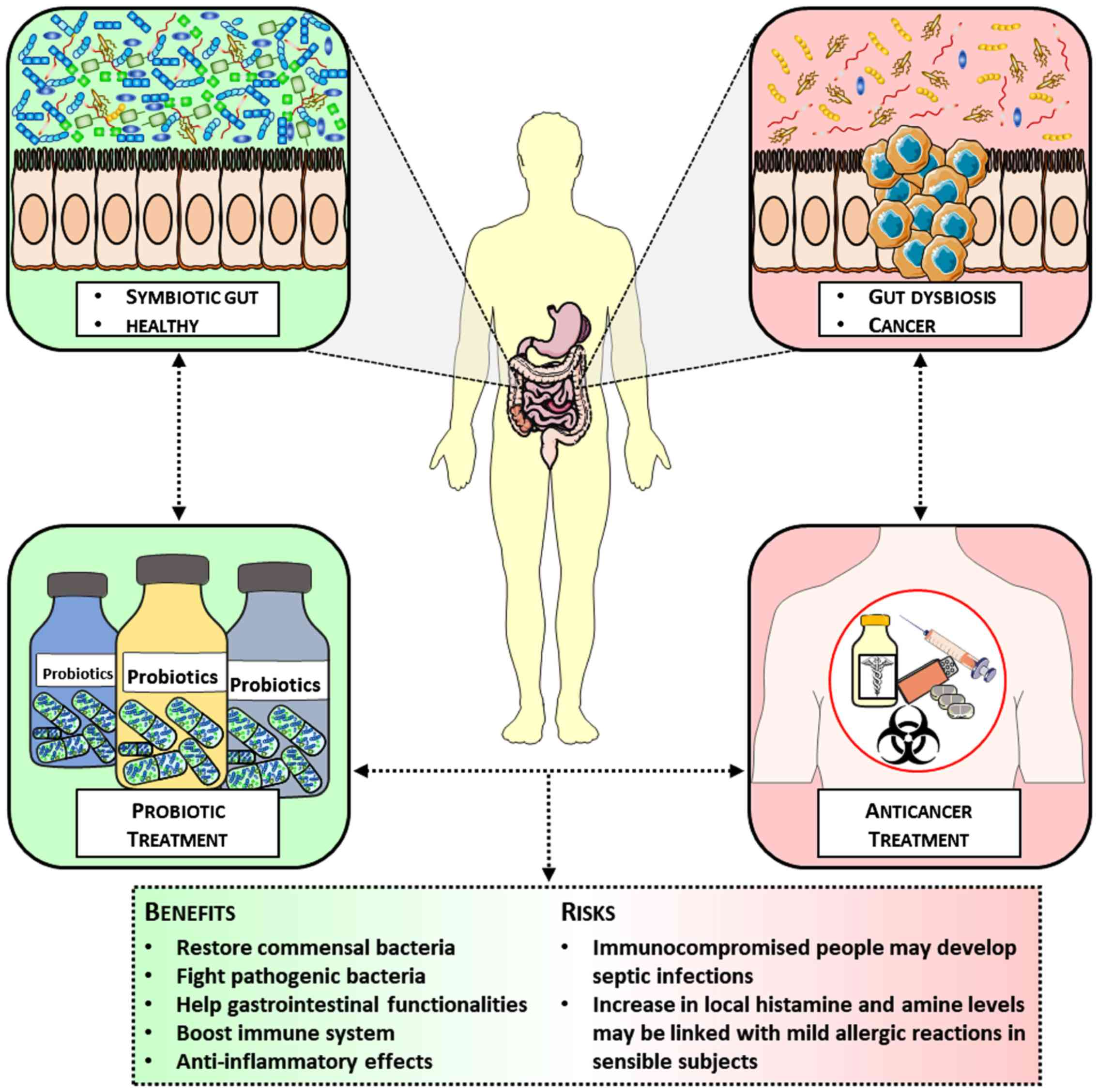 Benefits Of Using Probiotics As Adjuvants In Anticancer Therapy Review